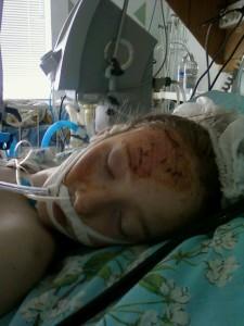 Новости Херсон. Девочка из Каховки в тяжелом состоянии после аварии