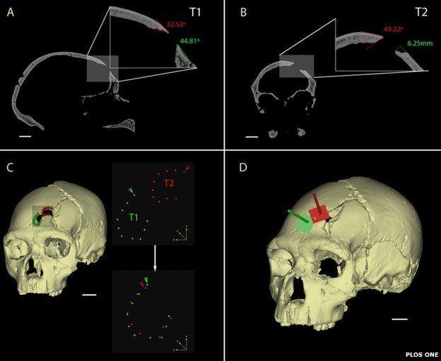 насилие, раскопки Испания, найден череп 450 лет, история насилия