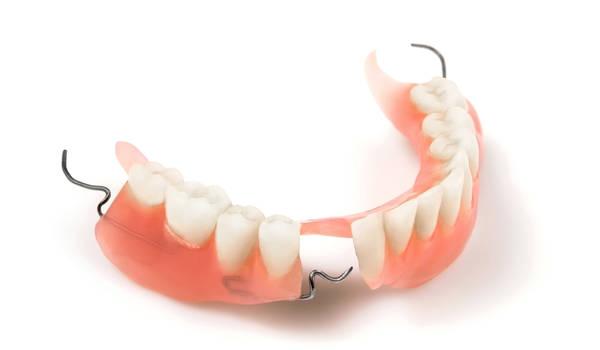 Почему съемные зубные протезы могут быть предпочтительней имплантов