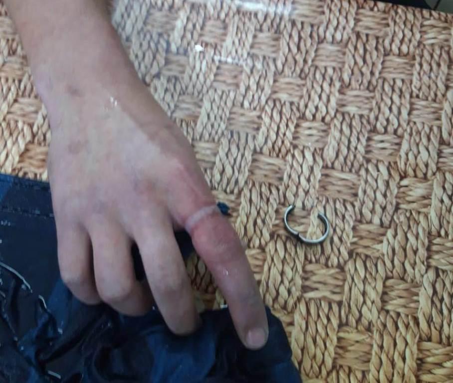 "В Херсоне спасатели освободили парня из ""плена"" кольца"